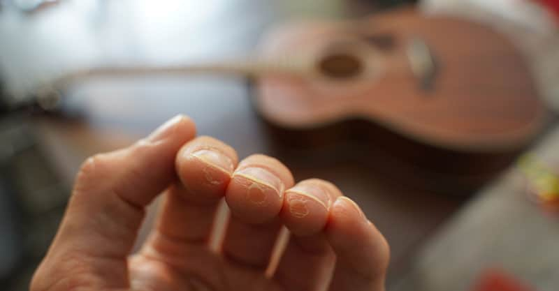 How to Reduce the Severity of Calluses